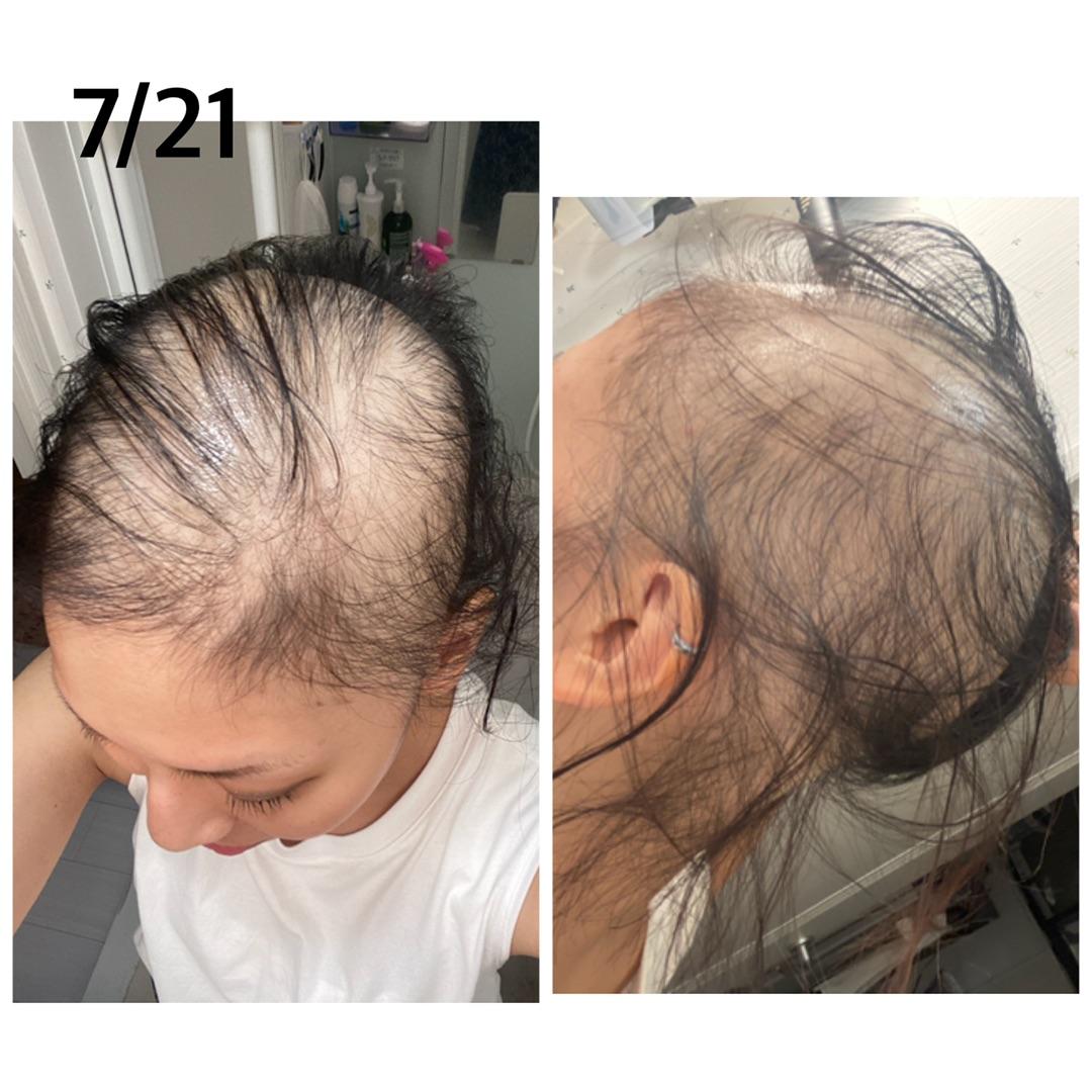 【コロナ】モデルナのワクチンを接種後に髪の毛が抜けてしまった女性が現れる